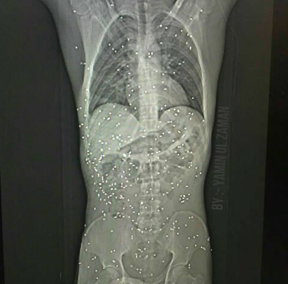 X ray of a person hit by a pellet gun reveals the kind of damage it can do. Pellet guns are usually reserved for use on animals.