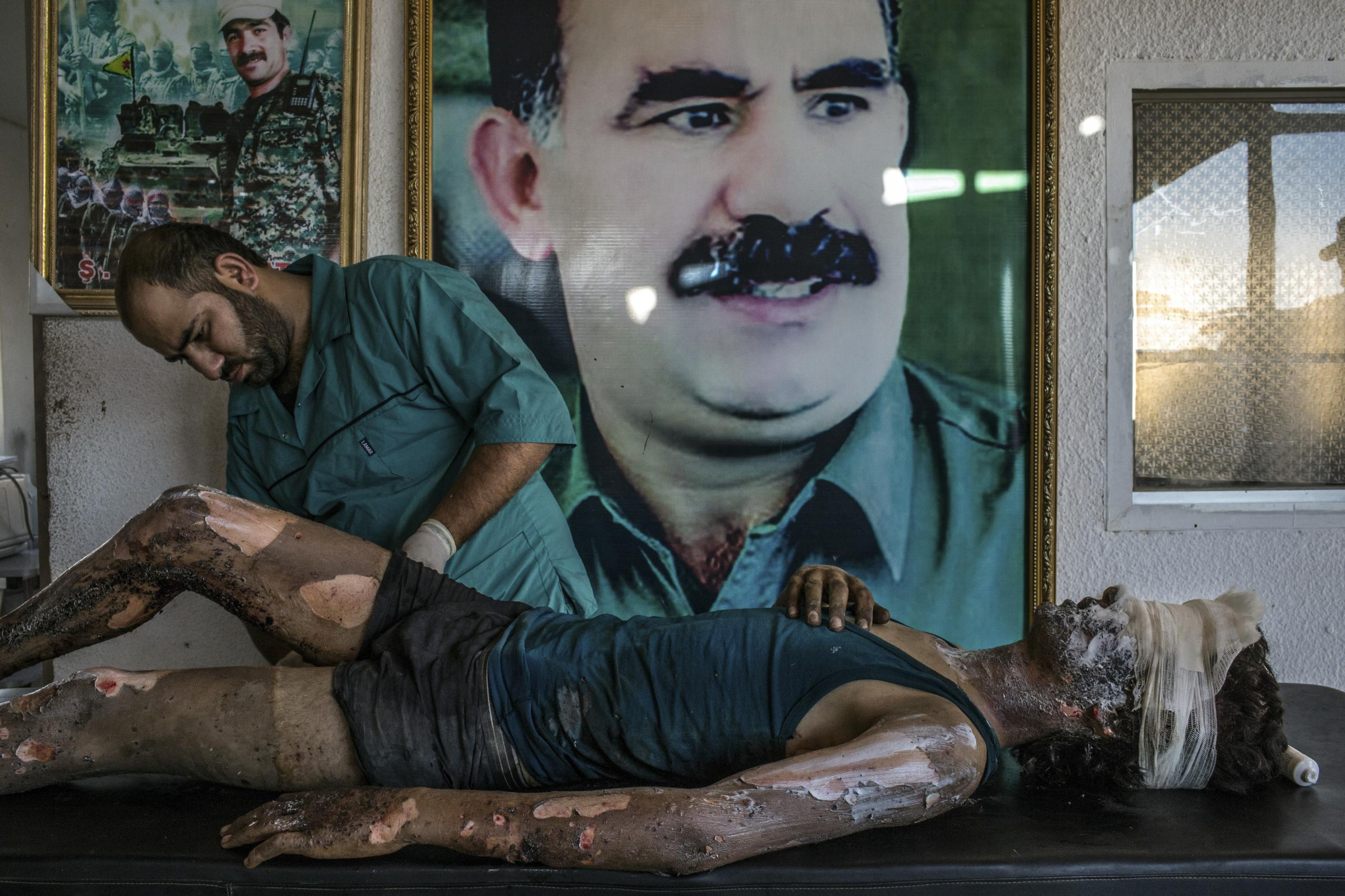IS Fighter Treated at Kurdish Hospital by Mauricio Lima. A doctor rubs ointment on the burns of Jacob, a 16-year-old fighter from the group calling itself Islamic State (IS), in front of a poster of Abdullah Öcalan, leader of the Kurdistan Workers' Party (PKK), at a hospital in Al-Hasaka, northern Syria.
